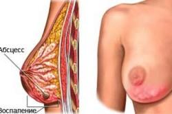 Профилактика заболеваний женской груди при помощи массажа