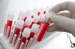 Анализы для постановки диагноза