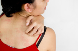 Сыпь на теле - противопоказание к загару в солярии