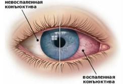 Конъюнктивит - причина выделений из глаз