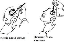 Алгоритм лечения глаза мазью и каплями