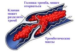 Польза болгарского перца при тромбофилии